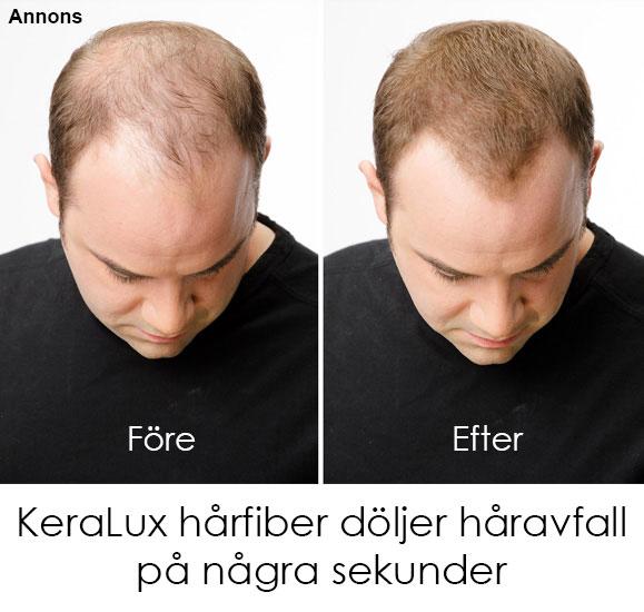 vad beror håravfall på
